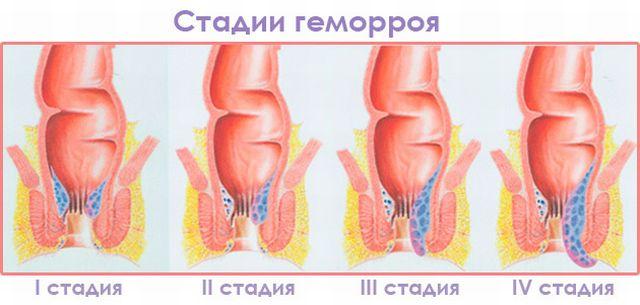 Геморрой 2,3 и 4