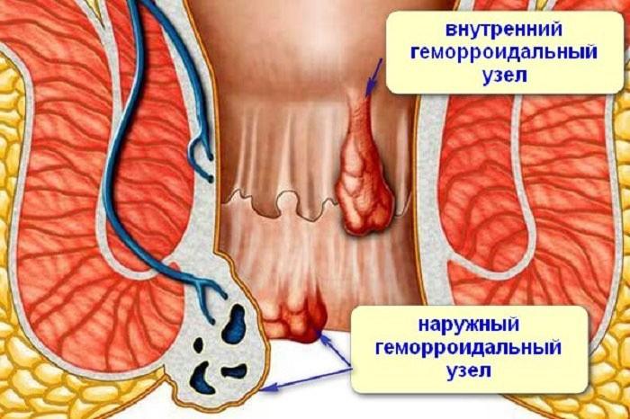 Геморрой – болезнь сосудов