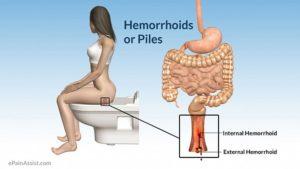 Геморрой лечение