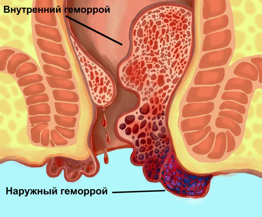 Геморрой является болезнью