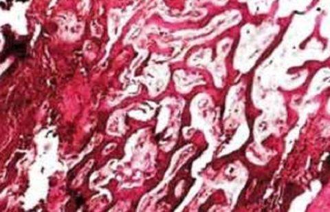 Гетеропластическая остеома образуется из клеток соединительной ткани.