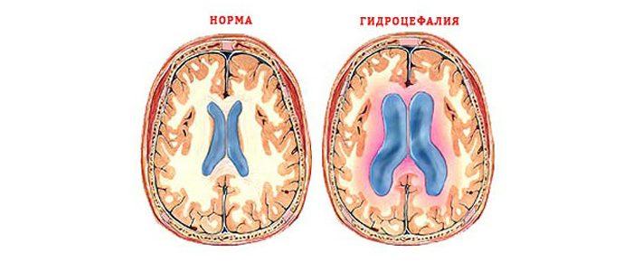 ВЧД и гидроцефалия