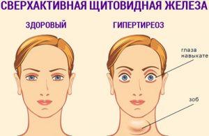 Тахикардия и слабость в теле