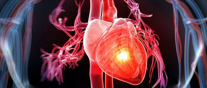 Гипертония и ишемическая болезнь сердца