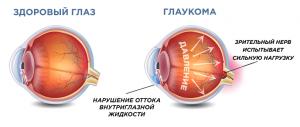 Диагностика и лечение хронической гипертонии