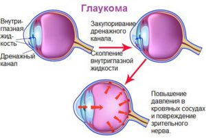 Глазная тонометрия
