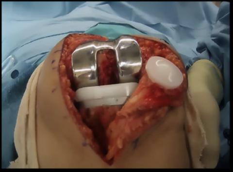 Главная цель хирургического вмешательства – максимально восстановить двигательные функции.
