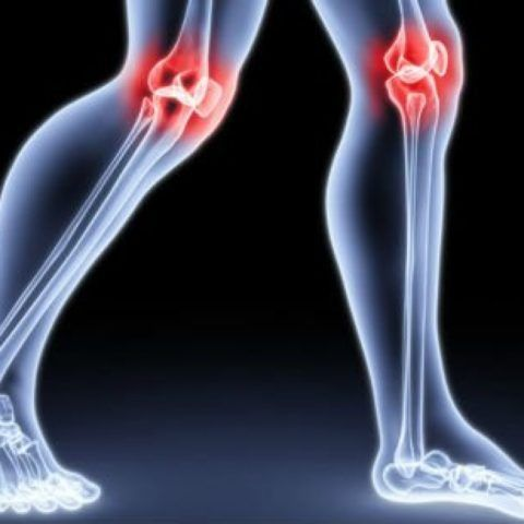 Гонартроз — это поражение хряща колена