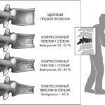 Грозным осложнением разрушения костной ткани позвоночника являются компрессионные переломы