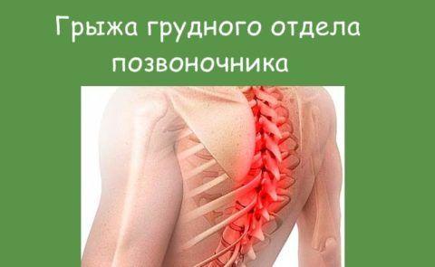 Грудное выпячивание позвоночника может давать болевые ощущения в области грудины, отдавать под лопатку, приводить к онемению верхних конечностей.