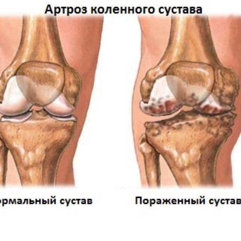 Хруст в колене — один из симптомов артроза