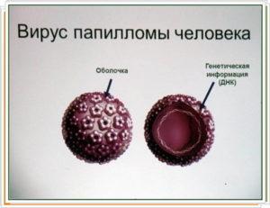 черная папиллома