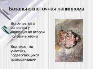 базальноклеточная папиллома