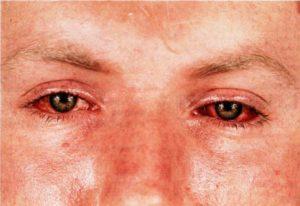 Хламидиоз глаз(хламидийный конъюнктивит)