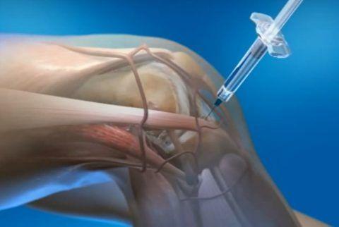 Инъекции для суставов часто просто незаменимы при серьезных заболеваниях.