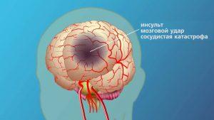 Кружится голова при аритмии