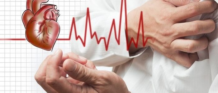 Аритмия при ишемии сердца