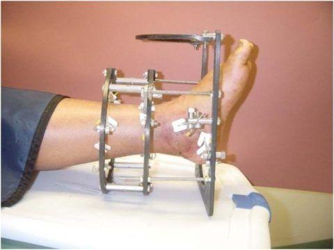 Использование аппарата Илизарова при лечении.