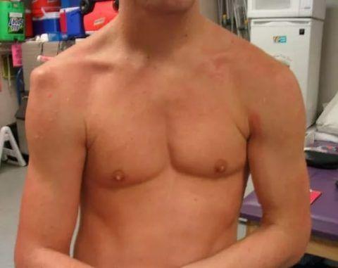 Из-за атрофии мышц плечо теряет округлую форму