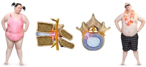 Избыточный вес снижает высоту межпозвоночного диска, вызывает его протрузию и радикулит