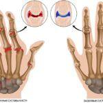 Изменения в суставной и хрящевой ткани пальцев верхних конечностей.