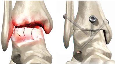 Что такое артродез суставов, и почему к нему прибегают в качестве крайней меры.