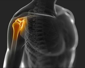 Воспаление плеча проявляется болью и нарушением движения