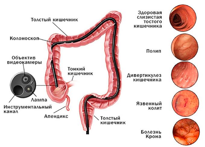 Колоноскопия - иследование