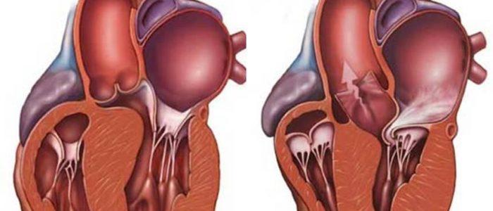 Концентрическая гипертрофия стенок левого желудочка