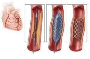 Признаки и лечение нестабильной стенокардии