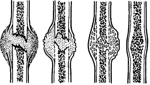 Костные анкилозные изменения происходят при разрастании костных тканей сочленений.