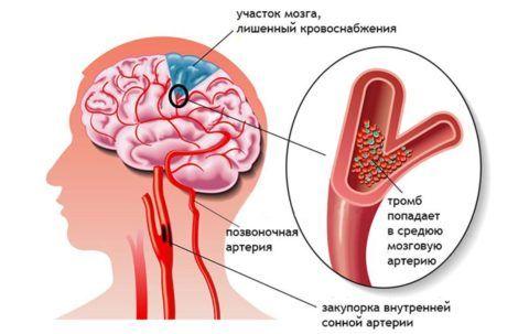 Критическое сужение сосуда может привести к развитию инсульта