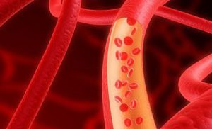 Можно ли парить ноги при гипертонии?