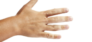 Что будет, если оторвать папиллому: можно ли отрезать, сбрить или выдавить