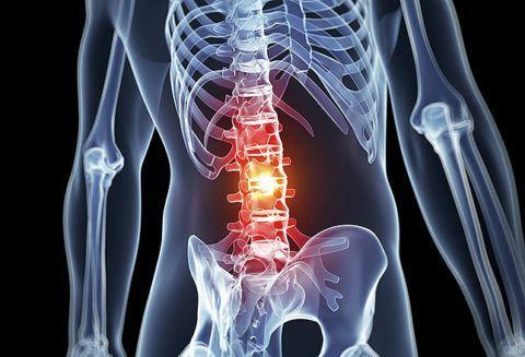 Лечение при остеохондрозе поясничного отдела