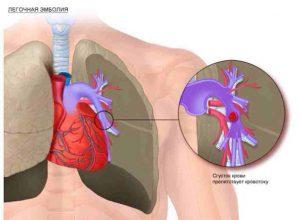 Причины и лечение проблем с сердечным давлением
