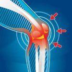Лигаментоз суставных соединений часто проявляет себя возникновением отека и боли в очаге поражения.