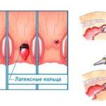 Основные методы лечения геморройной шишки