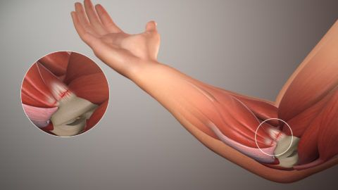 Локтевой сустав не очень часто подвержен развитию артроза