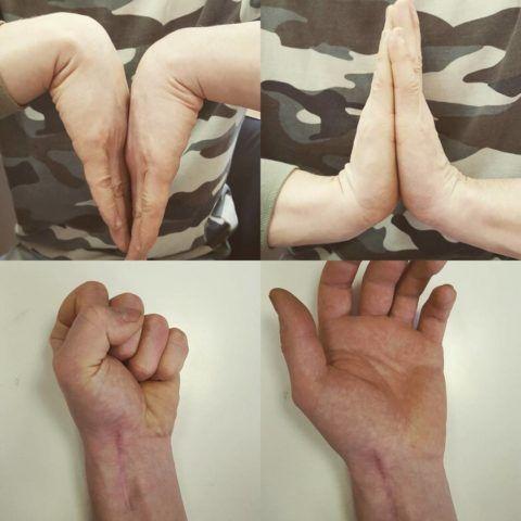Ложный сустав после перелома сопровождается выраженной подвижностью предплечья или голени в необычном месте