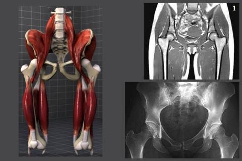 Магнитно-резонансная томография (1) и рентген тазобедренных суставов: норма