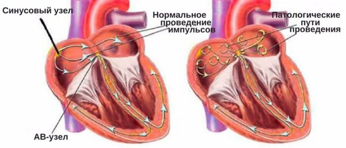 Симптомы и лечение мерцательной аритмии