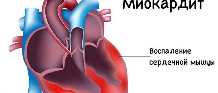 Миокардит и давление
