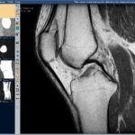 МРТ-диагностика поможет врачу увидеть состояние всех тканей суставного соединения.