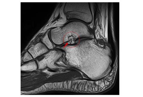 МРТ голеностопного сочленения со стороны внутренней лодыжки