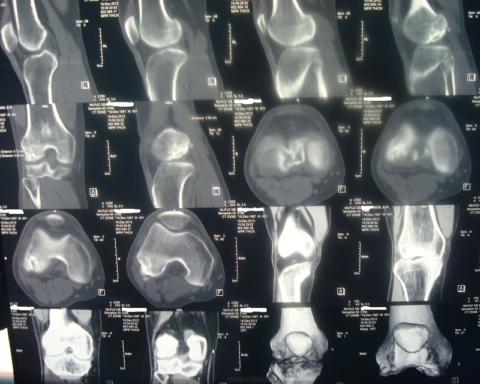 МРТ коленного сустава с III степенью гонартроза