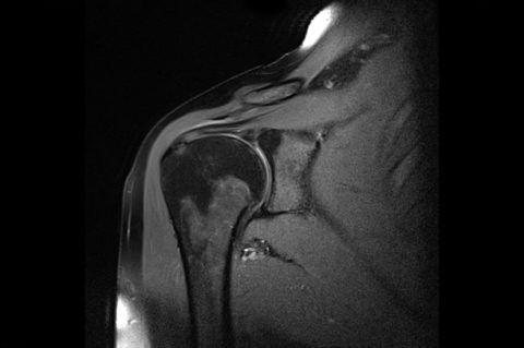 МРТ определяет место травмы, оценивает структуру и процессы в суставе