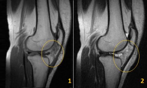 МРТ снимок здорового колена (1) и воспалённой жировой ткани (2)