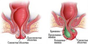 Мышечно-связочный аппарат анального канала