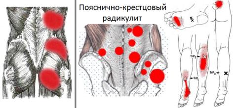 Мышечные «тиски» и триггерные точки при воспалении корешков поясницы